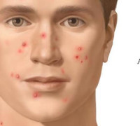What is Acne image
