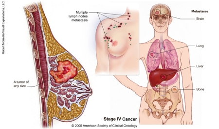 homeo treatment of breast cancer