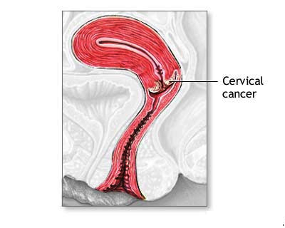 cervical cancer homeo treatment image