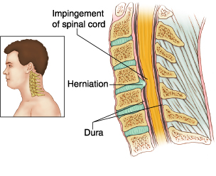 Cervical Disc Disease image