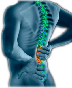 Homeopathic treatment of lumbar pain image
