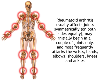 Rheumatoid Arthritis patient cured by Dr sabeel