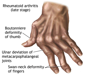 more symptoms of Rheumatoid arthritis image