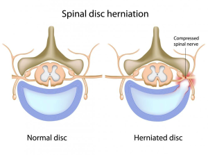homeopathic treatment of Spinal Disc Herniation in rawalpindi pakistan image