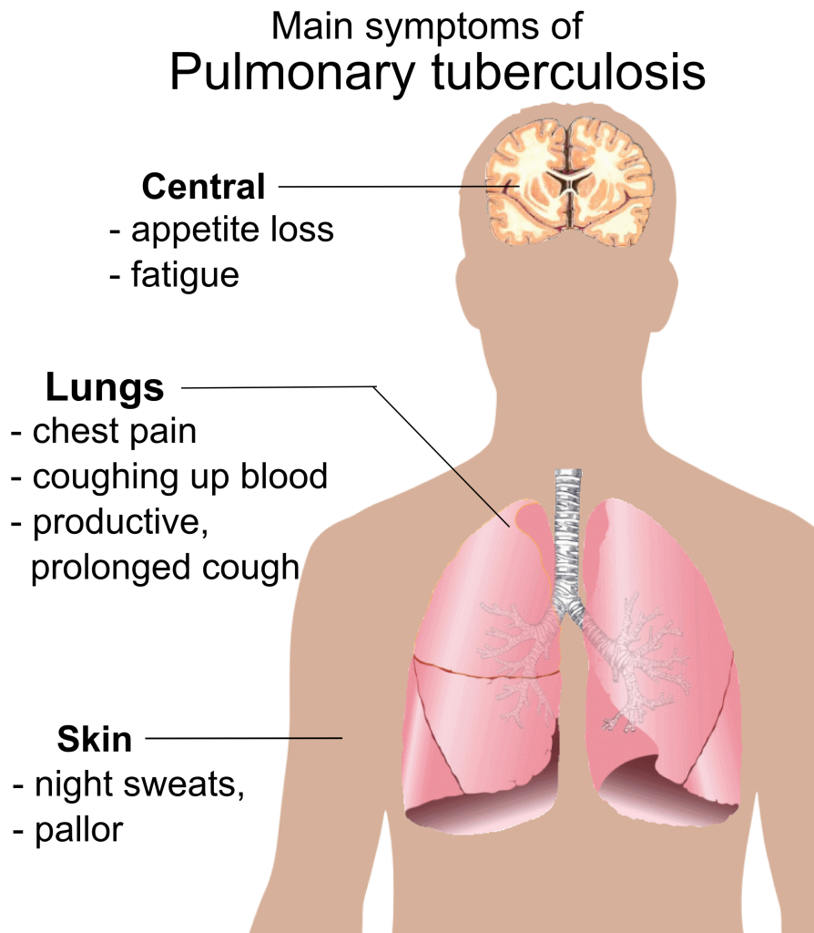 main symptoms of TB image