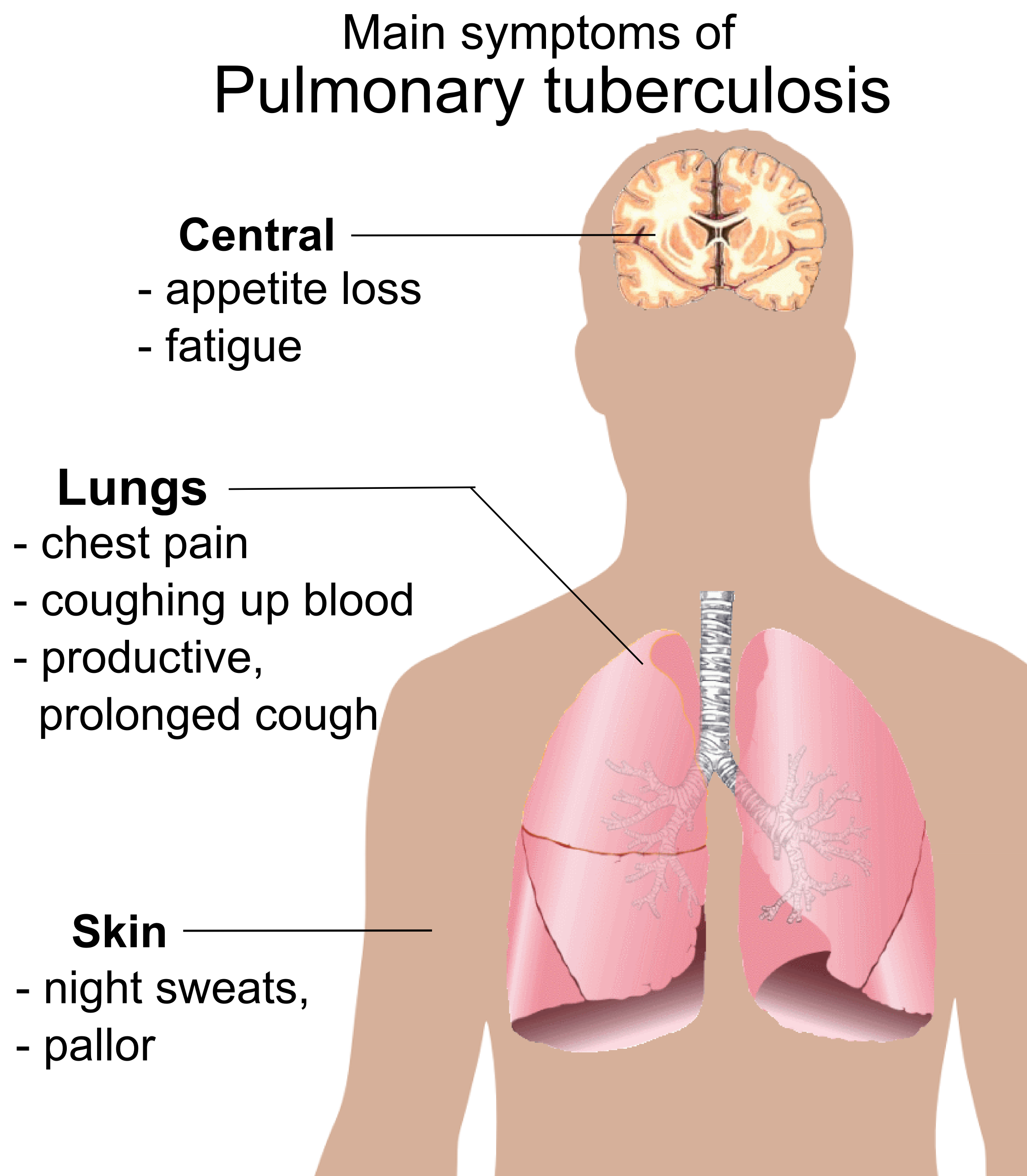 Safe and Painless Homeopathic Treatment of Tuberculosis in Pakistan