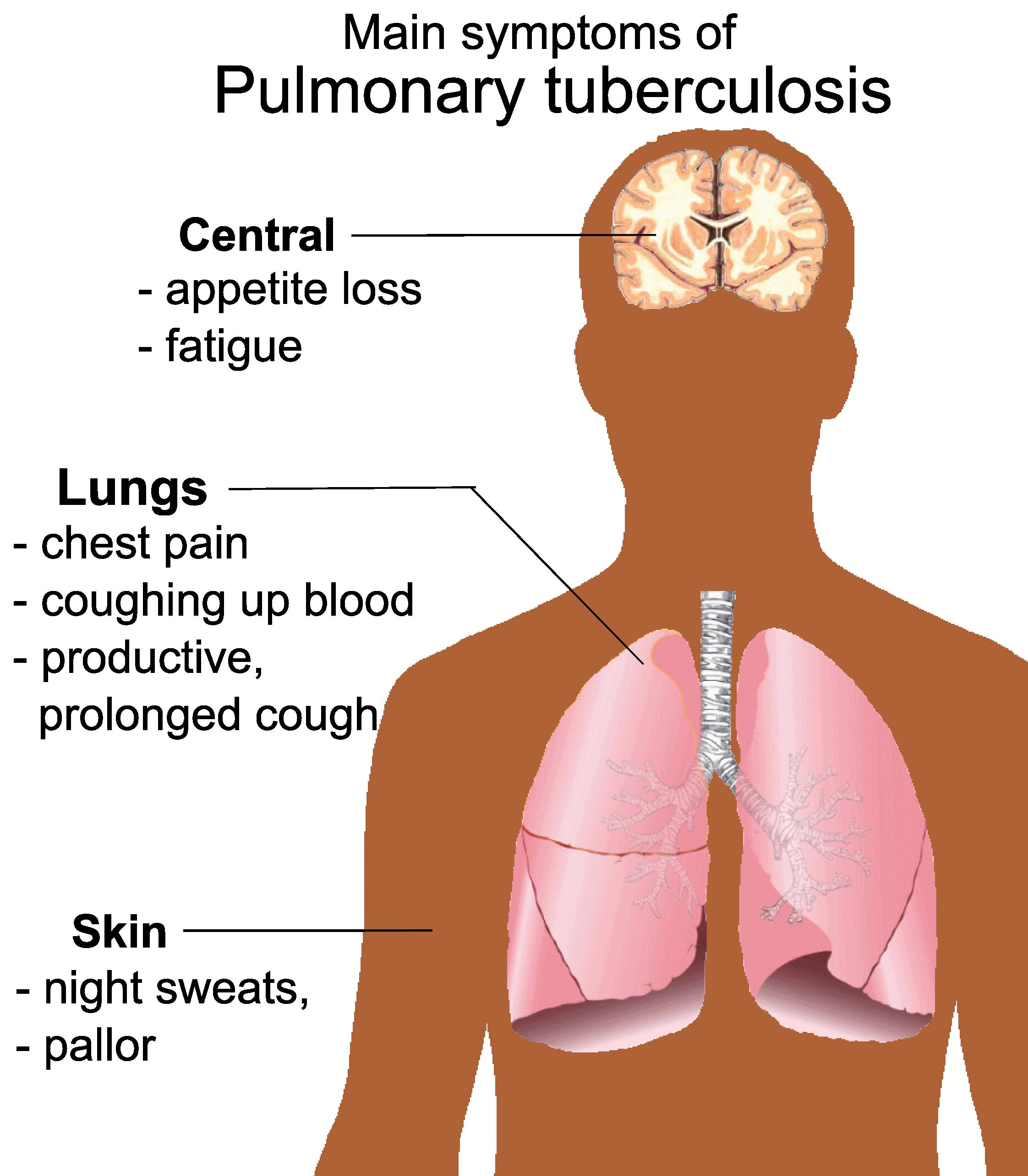 What is a symptom? 62