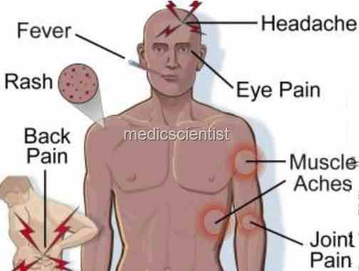 Common Symptoms of Typhoid Image