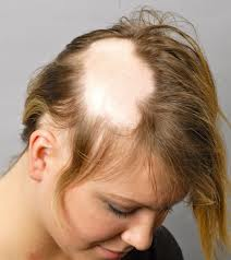 Alopecia-areata also effect women image