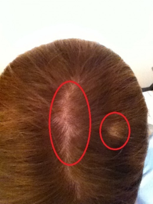 Bald spots on head image