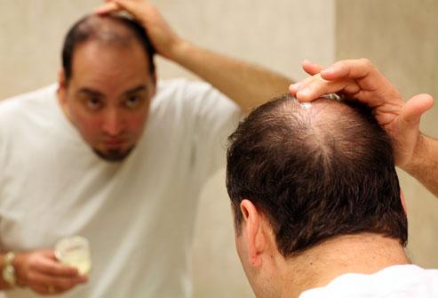 hair falling in men image