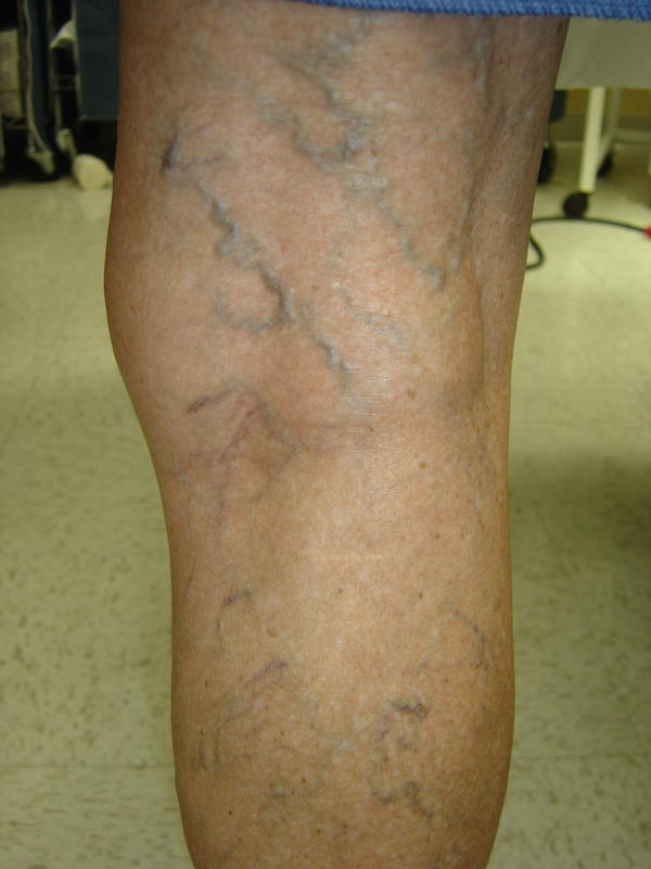 varicose veins treatment in homeopathy