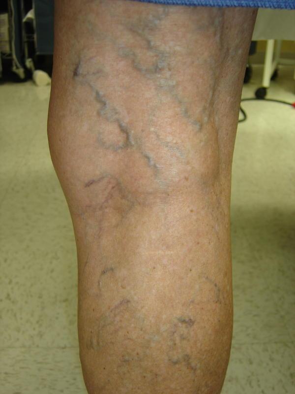 blue varicose veins