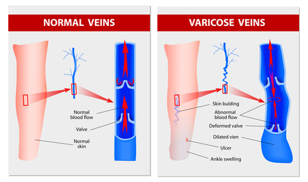 causes of varicose veins image