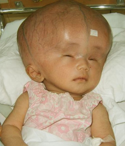 A hydrocephalus baby image