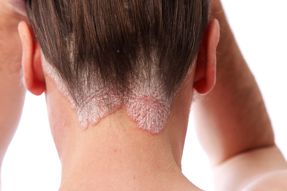 Psoriasis is a chronic skin condition where thick red and white patches appear on the skin 3