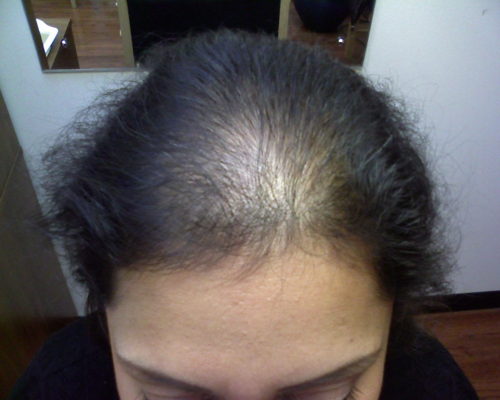Thinning of hair image