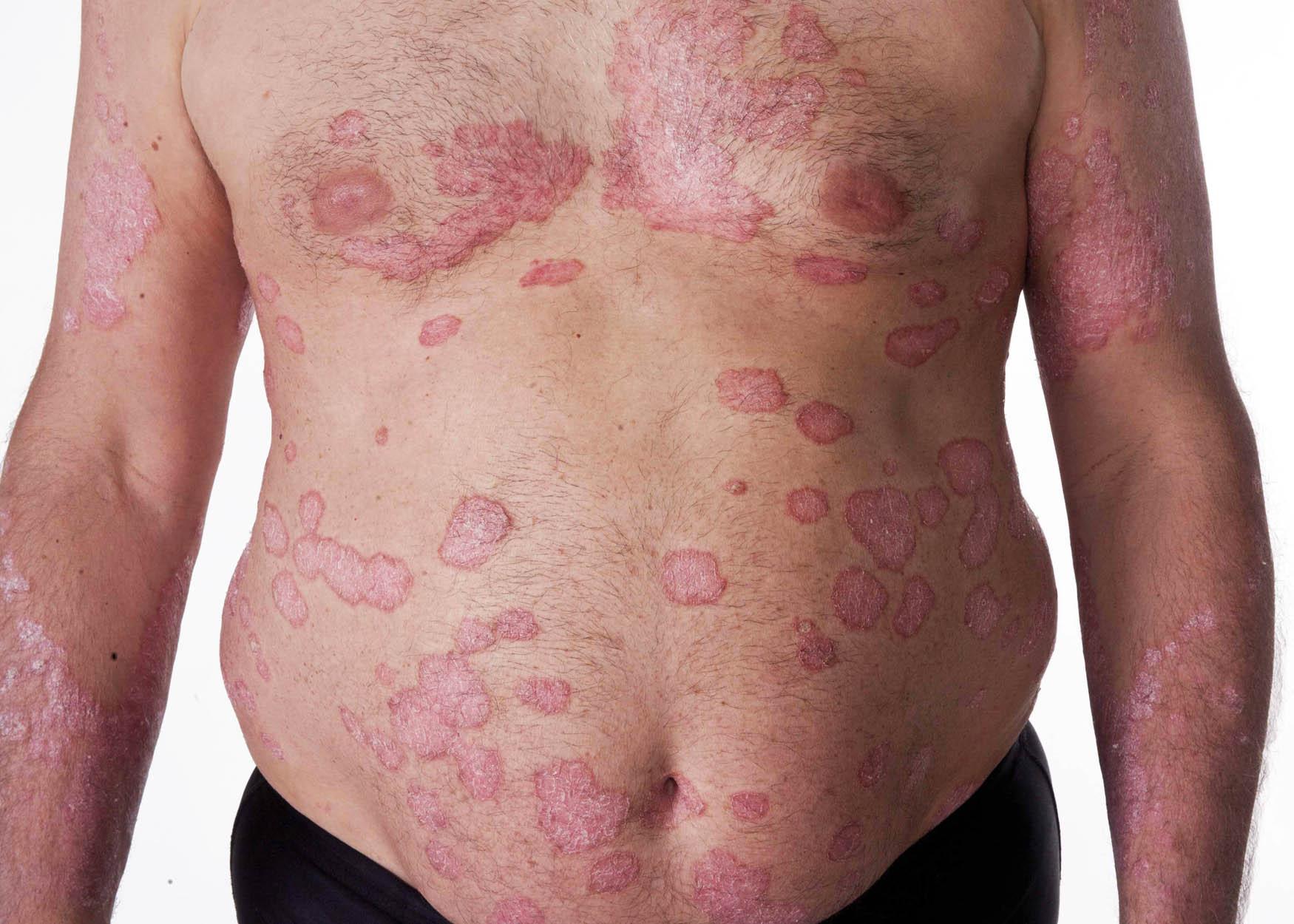 El picor de la piel de la psoriasis