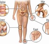 Arthritis Pain Points Image