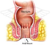 What is anal Fissure?