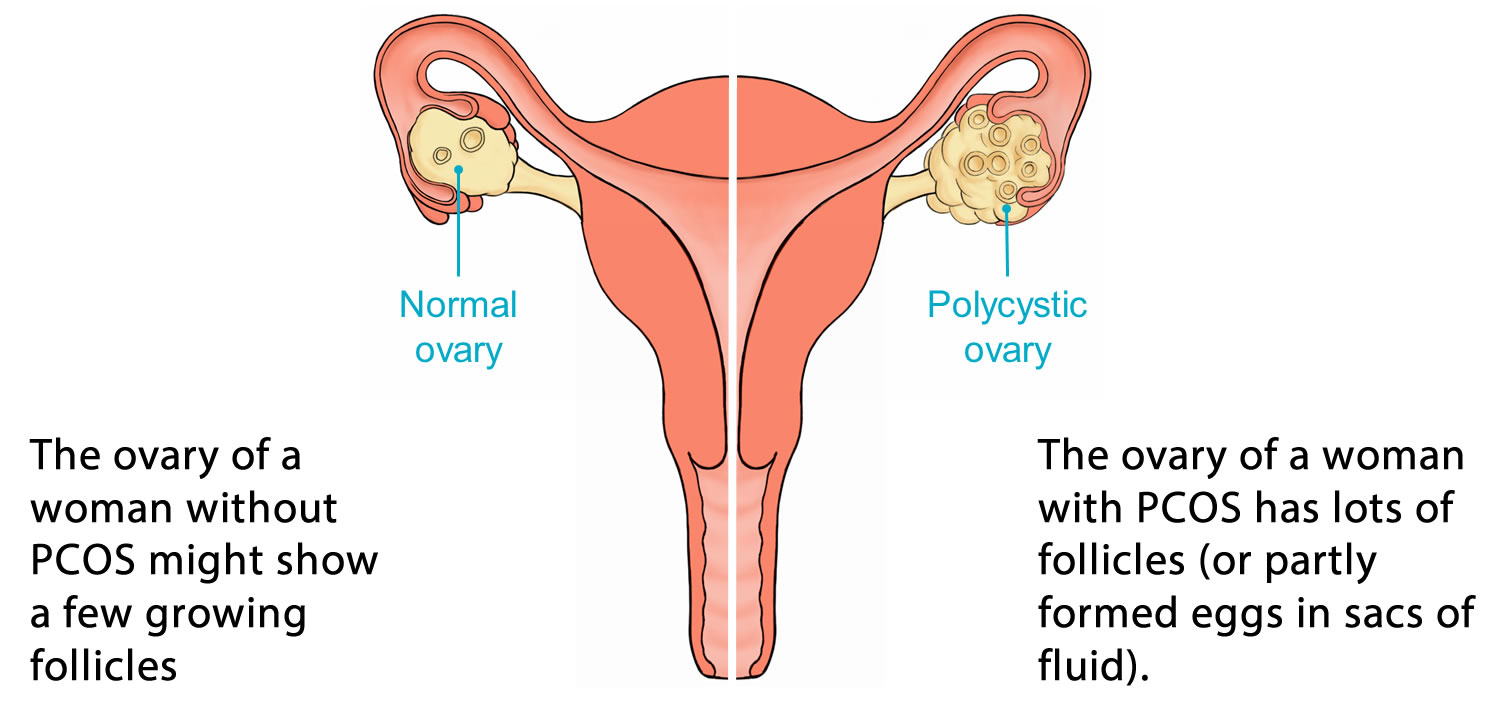 Normal and PCOS Ovary in Women's Reproductive System Image