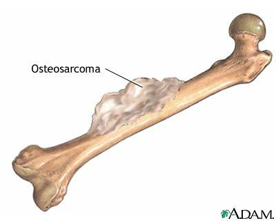 A bone with osteosarcoman