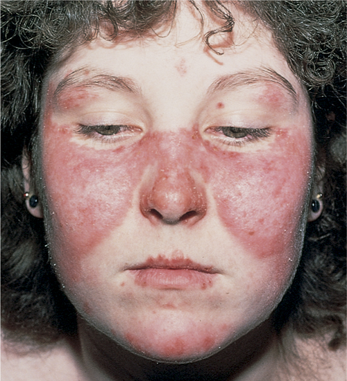 Baby or Toddler Skin Rash? Diagnosis, Cause and Treatment