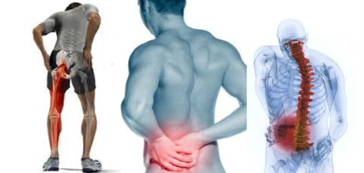 what is sciatica pain