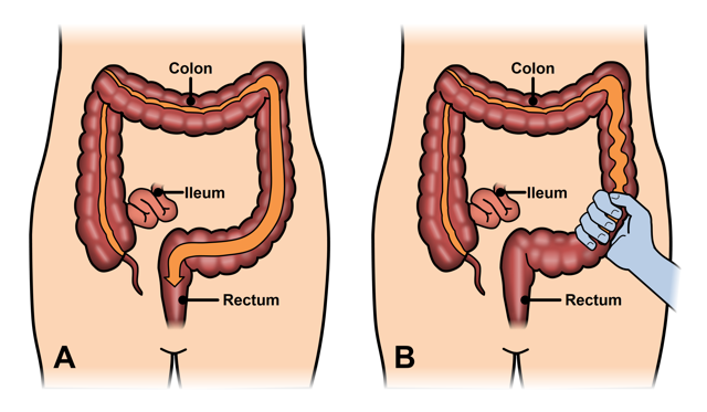 IBS Causes and sabeel homeopathic