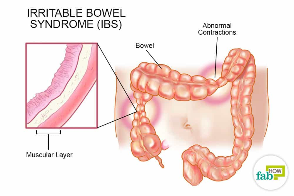 IBS Irritable Bowel Syndrome homeopathic causes and symptoms