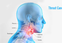 sabeel homeopathic thoat cancer treatment