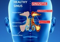 homeopathic doctor sabeel treatment of Sinusitis