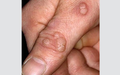 what is warts and causes