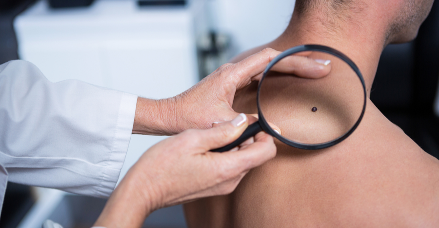 Diagnosis of mole and homeopathic treatment