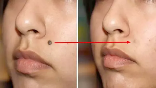 Homeopathic treatment of moles