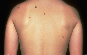 what is mole and treatment in homeopathic