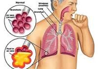 cough homeopathic treatment