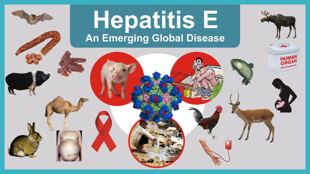Hepatitis E-Symptoms-Causes-Treatment Homeopathic Treatment