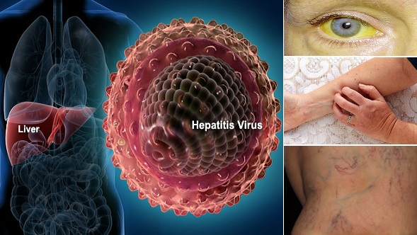 Hepatitis E-Symptoms-Causes-Treatment Homeopathic Treatment.jpg